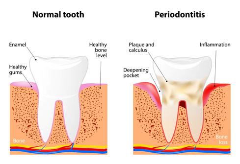Gum Disease Soldotna AK