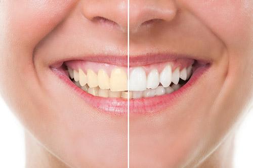 Professional Teeth Whitening Soldotna AK
