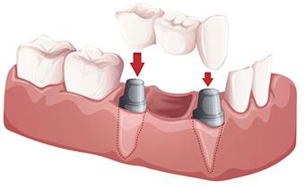 dental bridge Soldotna AK